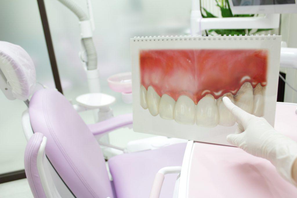歯周病イメージ画像